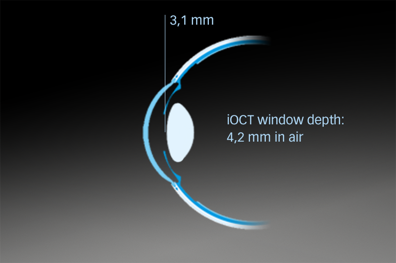 HS_iOCT_Window-depth-within-the-eye_2_800x533px.png